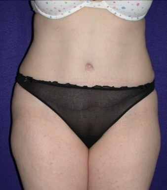 Tummy Tuck (abdominoplasty) after 208484