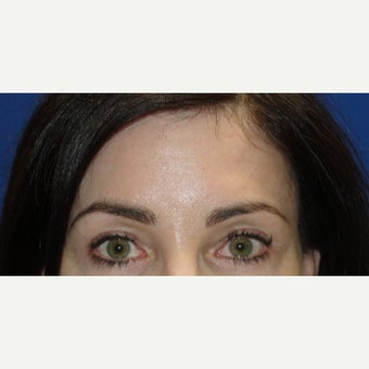 45-54 year old woman treated with Brow Lift after 1781903