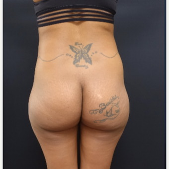 25-34 year old woman treated with Fat Transfer and 712cc Butt Implants before 3129129