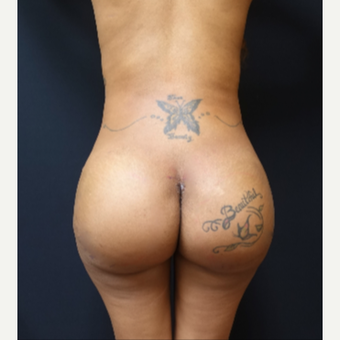 25-34 year old woman treated with Fat Transfer and 712cc Butt Implants after 3129129