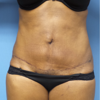 35-44 year old woman treated with Tummy Tuck after 3168438