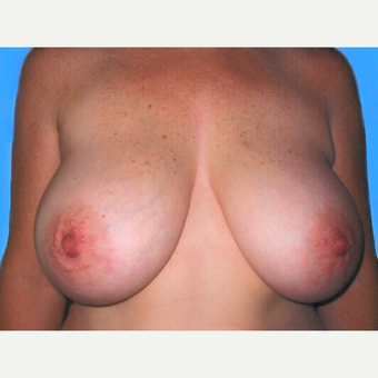 Breast Reduction before 3810027