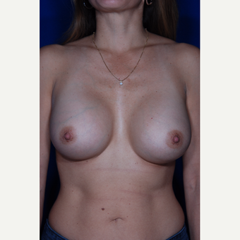 25-34 year old woman treated with Breast Augmentation after 3005397