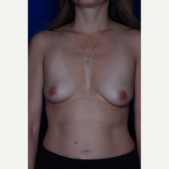25-34 year old woman treated with Breast Augmentation before 3005397