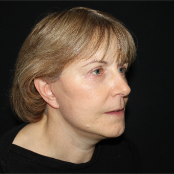 55-64 year old woman treated with Lower Face Lift after 3818904