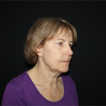 55-64 year old woman treated with Lower Face Lift before 3818904