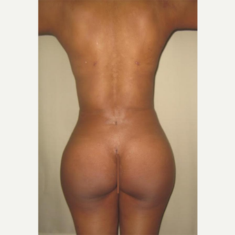 25-34 year old woman treated with Butt Augmentation after 2728457