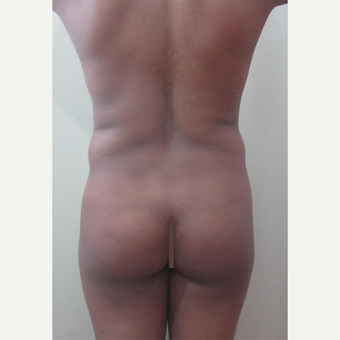 25-34 year old woman treated with Butt Augmentation before 2728457