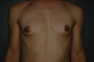 MTF trangender breast augmentation. Submuscular textured, shaped silicone implants. Incision under breast. before 1130786