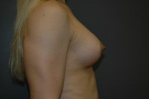 MTF trangender breast augmentation. Submuscular textured, shaped silicone implants. Incision under breast. 1130786