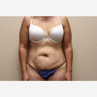 25-34 year old woman treated with Tummy Tuck before 3737255