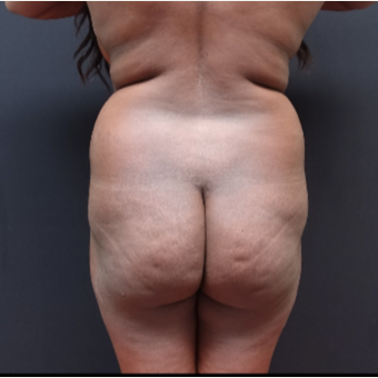 25-34 year old woman treated with Liposculpture before 3363892