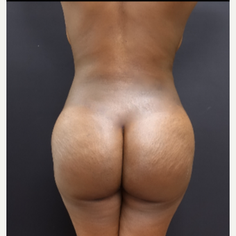 25-34 year old woman treated with Liposculpture after 3363892