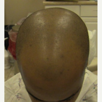25-34 year old man treated with FUE Hair Transplant before 1753319