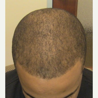 25-34 year old man treated with FUE Hair Transplant after 1753319