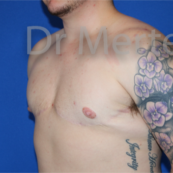 18-24 year old man treated with FTM Chest Masculinization Surgery after 3828897
