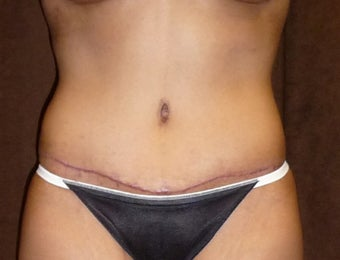 33 Year Old Female who Underwent an Abdominoplasty and flank liposuction after 1250660