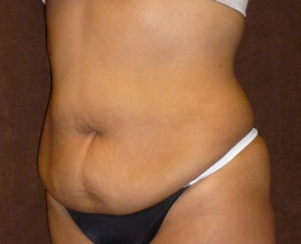 33 Year Old Female who Underwent an Abdominoplasty and flank liposuction 1250660
