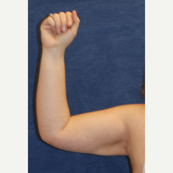 44 year old woman treated with Arm Liposuction after 3136232