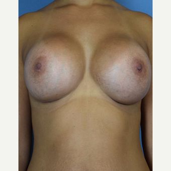 25-34 year old woman treated with Breast Augmentation after 3529489