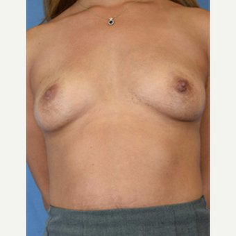 25-34 year old woman treated with Breast Augmentation before 3529489
