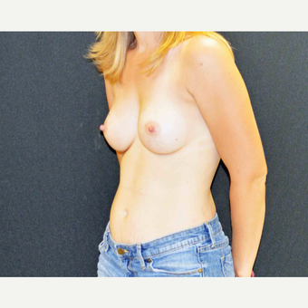"27 year old female who is 5'2"" and 122 pounds underwent breast augmentation with 285cc silicone gel after 2990074"