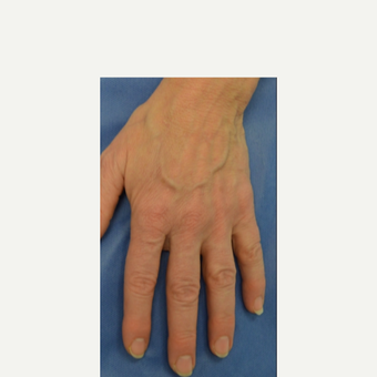 55-64 year old woman treated with Vein Treatment before 3399550