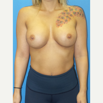 30 year old female Breast Augmentation after 3259689
