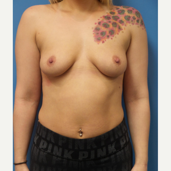 30 year old female Breast Augmentation before 3259689