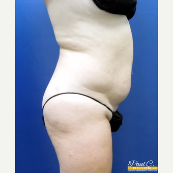 25-34 year old woman treated with Liposuction before 3610504