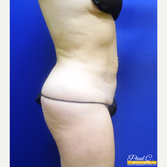 25-34 year old woman treated with Liposuction after 3610504