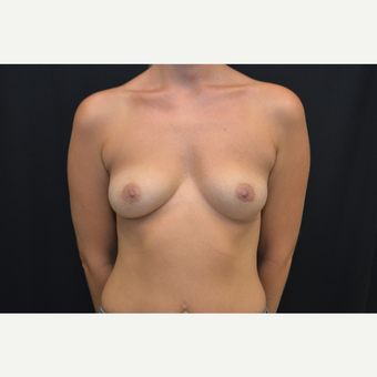 29-year old female bilateral breast augmentation - silicone gel implants before 3748677