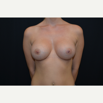 29-year old female bilateral breast augmentation - silicone gel implants after 3748677