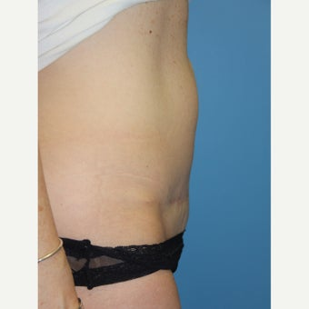 36 year old woman treated with Exilis before 2655524