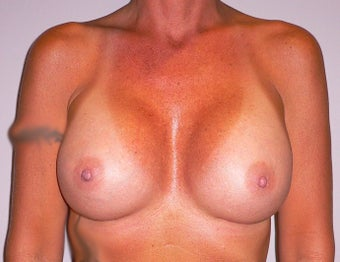 41 yea rold woman has Breast Implant Exchange after 979023