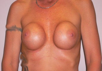 41 yea rold woman has Breast Implant Exchange before 979023