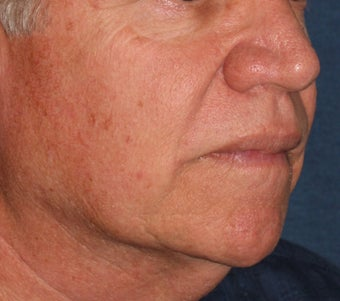 56 year old treated for red capillaries on nose, cheeks, and chin after 1480503