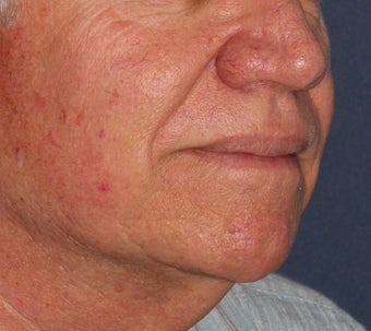 56 year old treated for red capillaries on nose, cheeks, and chin before 1480503
