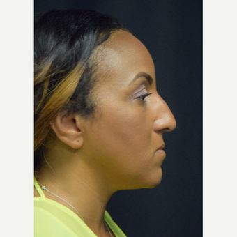 35-44 year old woman treated with Rhinoplasty before 3493385