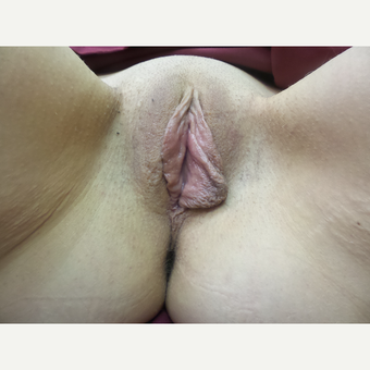 35-44 year old woman treated with Labiaplasty before 3542226