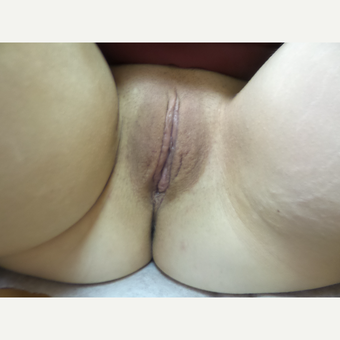35-44 year old woman treated with Labiaplasty after 3542226