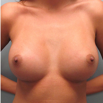 25 year old woman treated with Breast Augmentation after 3468364