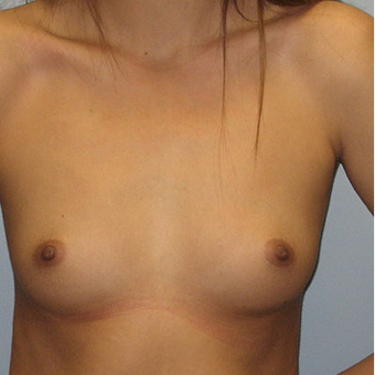 25 year old woman treated with Breast Augmentation before 3468364