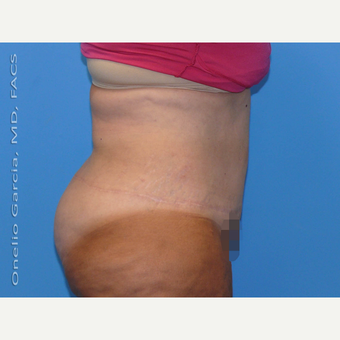35-44 year old woman treated with Body Lift after 3041515