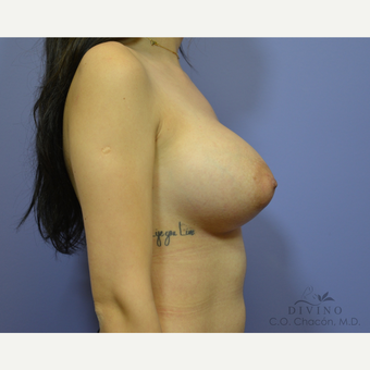 25-34 year old woman treated with Breast Augmentation after 3419033