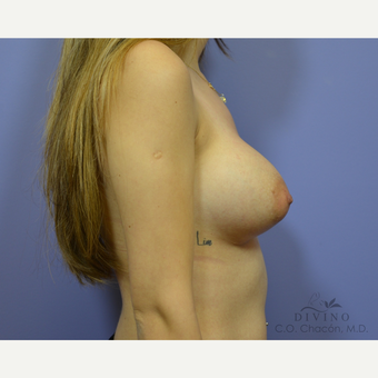 25-34 year old woman treated with Breast Augmentation before 3419033