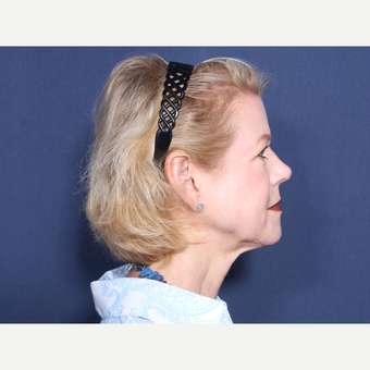 55-64 year old woman treated with Neck Lift (view 2 of 2) before 3175518