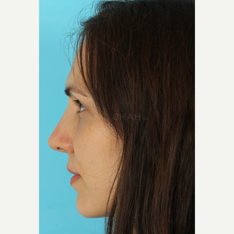 25-34 year old woman treated with Rhinoplasty after 3690808