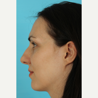 25-34 year old woman treated with Rhinoplasty before 3690808