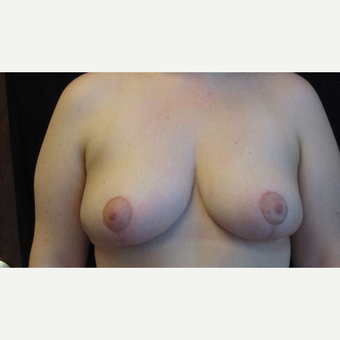 Breast Reduction after 3130307